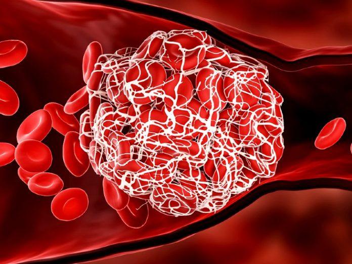 blood clot 1630333941